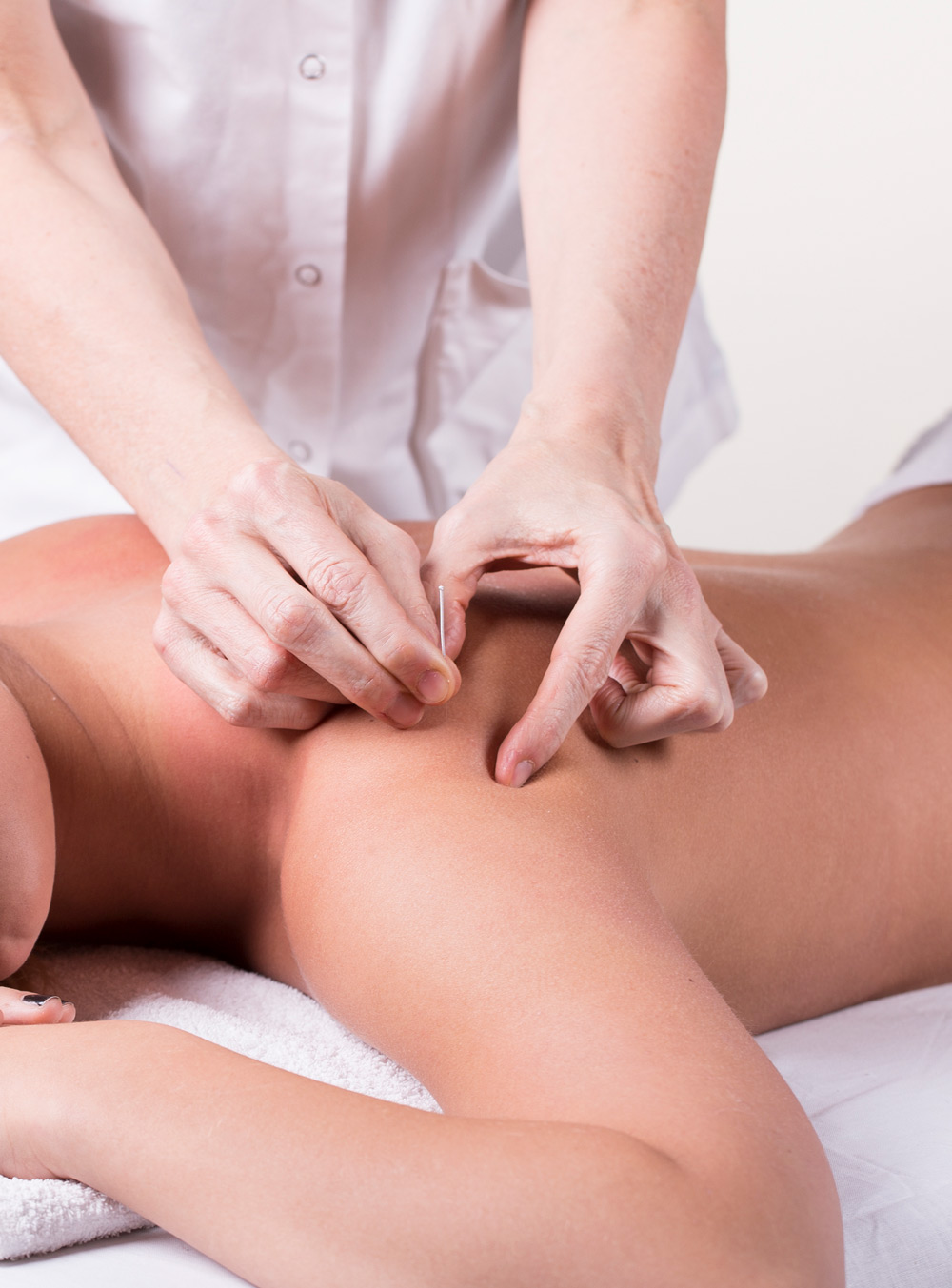 Dry needle physical therapy in Jacksonville, FL.