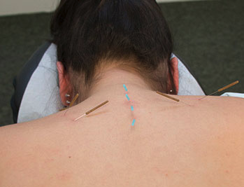 Dry needling for neck pain being administered.