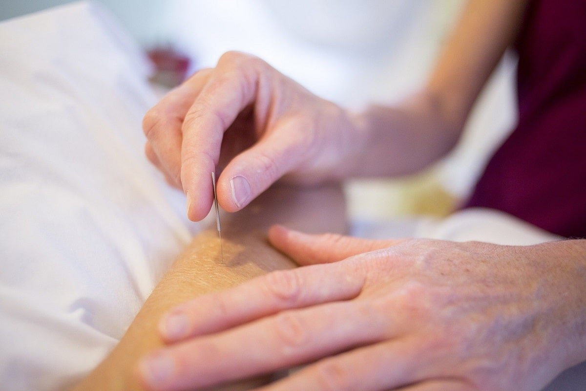 Experienced dry needling specialist providing services to a patient.