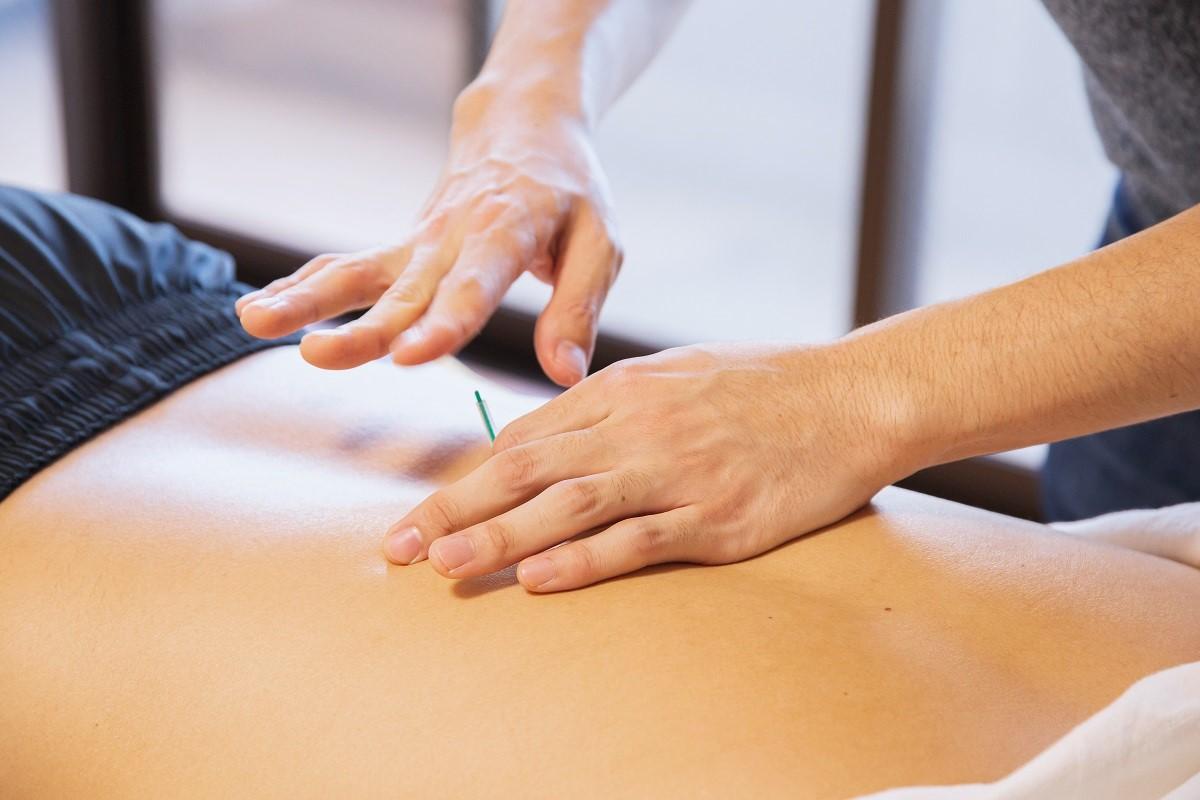 How Often Should I Get a Dry Needle Treatment?