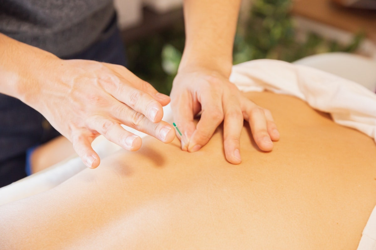 The History of Dry Needling